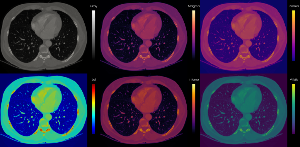 Medical Visualization Colormaps
