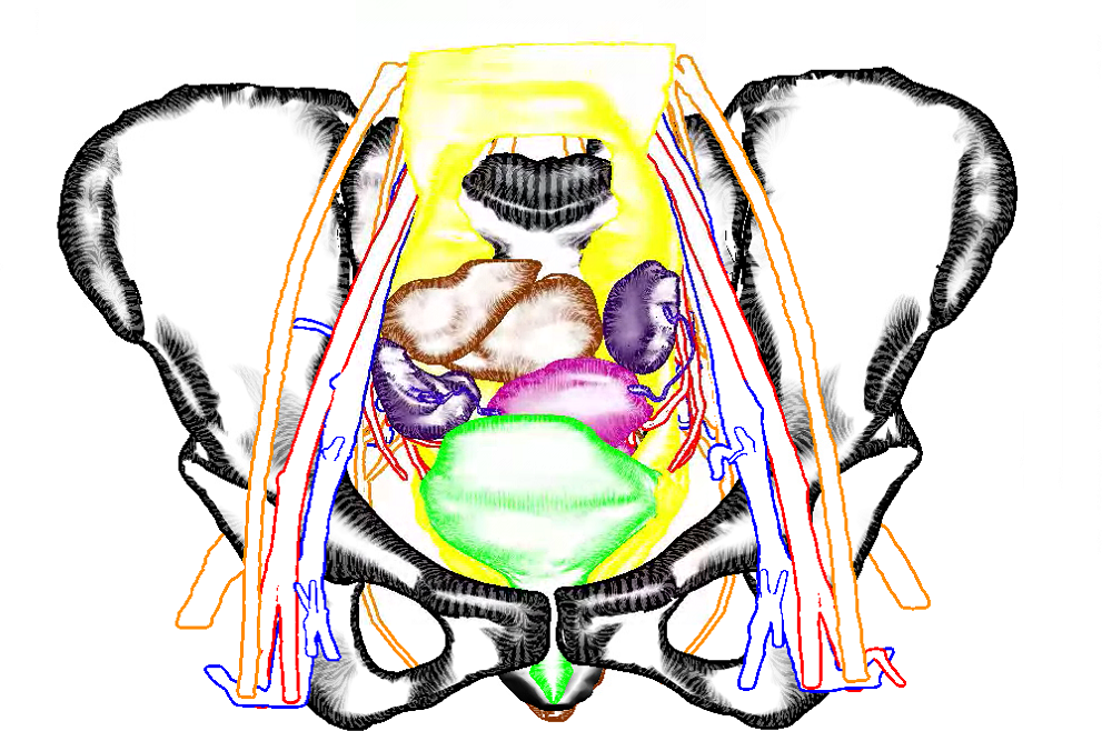 Our Virtual Surgical Pelvis illustrated using Sline